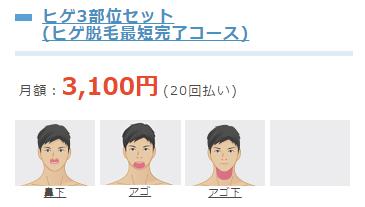 月額3,100円