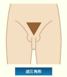 逆三角形型